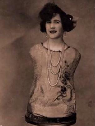Aloisia Wagner se narodila bez rukou a nohou. Pohybovala se poskoky a i přes svůj handicap se o sebe dokázala postarat. Od 15 vystupovala v cirkusu a byla velmi oblíbená.