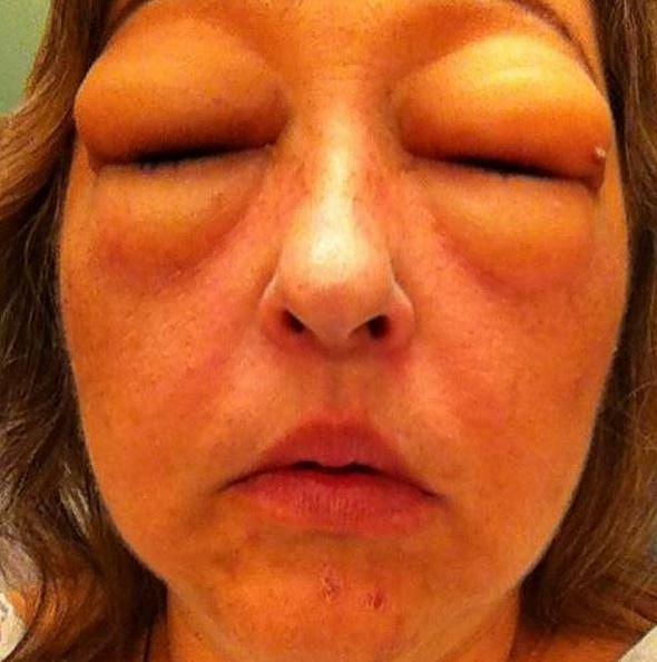 Alergická reakce způsobená léky.