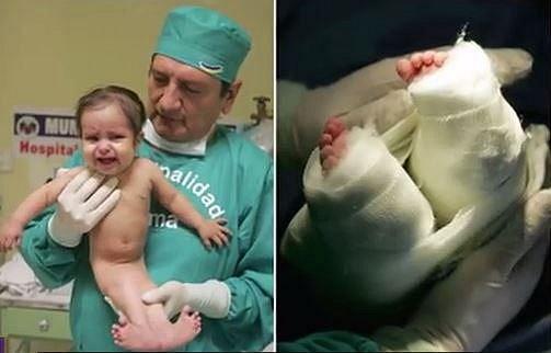 Milagros Cerron známá jako peruánská mořská panna se též narodila se srostlými nožičkami. Ovšem tu se rodiče rozhodli nechat operovat. Operace se zdařila a dívenka dnes dokáže chodit a vede normální život.