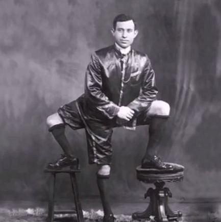 Francesco Lentini byl známý jako muž se třemi nohami. Jeho siamské dvojče na něm parazitovalo v podobě třetí nohy a genitálií.