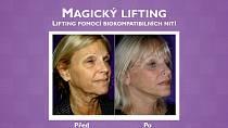 Lifting, který nebolí: Vyzkoušejte magické mezonitě