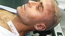 Ted Bundy po provedení trestu smrti.