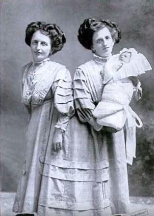 Josefa a Rosa Blazeh - siamská dvojčata, jezdila s cirkusem po celém světě. Na snímku drží Rosa svého syna. Ženy se dožily 44 let.