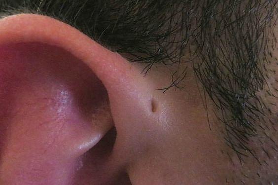 Záhadná dutinka u ucha