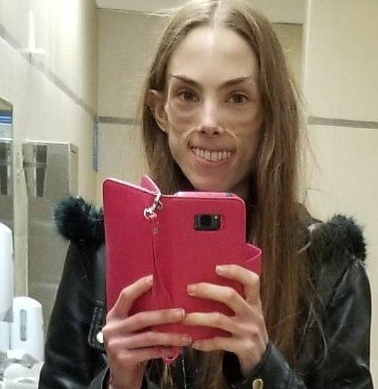 Brianna je dvacetiletá dívka, která od svých osmi let bojuje s anorexií.
