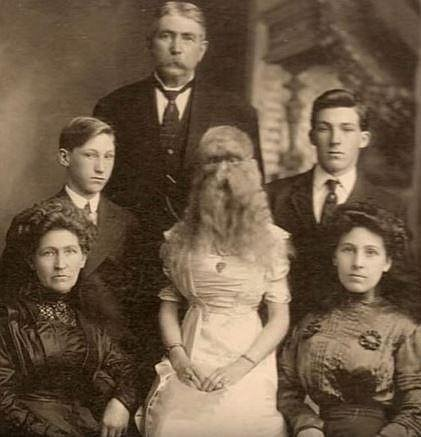 Alice sedící uprostřed tohoto snímku bohužel trpěla syndromem, kdy mají takto postižení jedinci celé tělo pokryté chlupy.