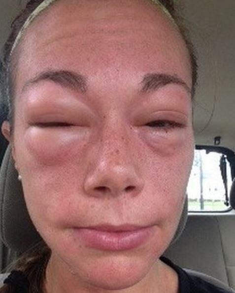 Alergie na oční krém.