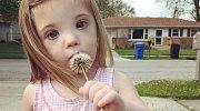 Felicity žije s Downovým syndromem
