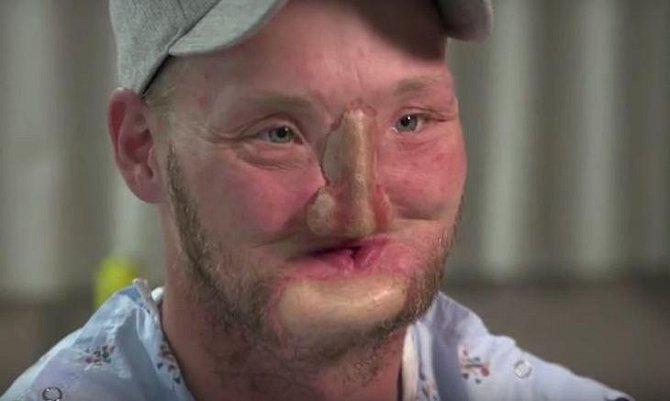Andy Sandness po rekonstrukci obličeje pomocí titanu.