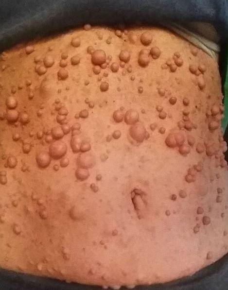 Libby trápí fibromy po celém těle.