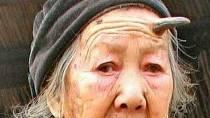Máte na svém těle mateřské znaménko? Pokud ano, tak doporučujeme jej bedlivě sledovat. Liang Xiuzhen z Číny to nedělala, a tak jí ze znaménka na čele vyrostl roh dlouhý 12,7 cm. Útvar na stařenčině hlavě je složen z keratinu podobn...