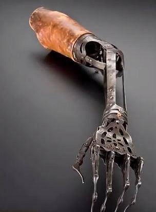 Protéza levé ruky, 1910