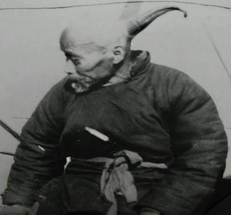 Wang - Lidský jednorožec. Tomuto Číňanovi vyrůstal z hlavy 33 cm dlouhý roh.
