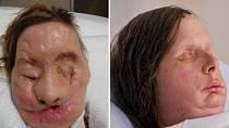 Travis ženě v podstatě utrhl celou tvář a kusy rukou. Dnes je Charla po transplantaci obličeje a snaží se žít normální život. Bohužel je ale dokázána na pomoc svého okolí, jelikož je nevidomá.
