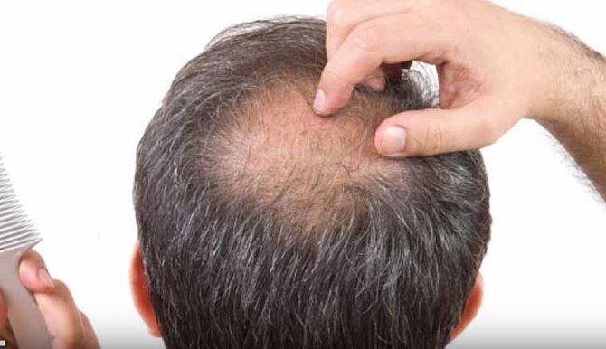 """Postupně by mělo úplně zmizet ochlupení, včetně vlasů. To souvisí s oteplováním, nebude potřeba se """"chránit srstí""""."""