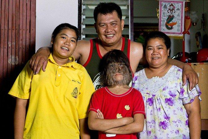 Supatra se svými rodiči a sestrou. Všichni její příbuzní jsou normální, ona je první, kdo se narodil s touto genetickou vadou.