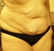 """Paní Věra: """"Mám ošklivé jizvy po dvou operacích a stydím se za ně."""""""