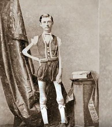 Isaac Sprague - Živoucí kostra, takovou dostal Isaac přezdívku. Isaac se narodil v roce 1841 a do svých 12 let byl normálním dítětem. Poté začal nekontrolovatelně hubnout.