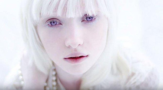 Nastya Zhidková trpí formou albinismu. Její vlasy, řasy, obočí jsou naprosto bílé, pleť má porcelánovou.