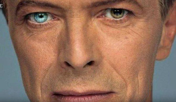 David Bowie měl jedno oko výrazně jiné barvy než to druhé