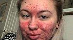 Abigail Colins se akné stále zhoršuje. Nebojí se ale ukázat svou pravou tvář.