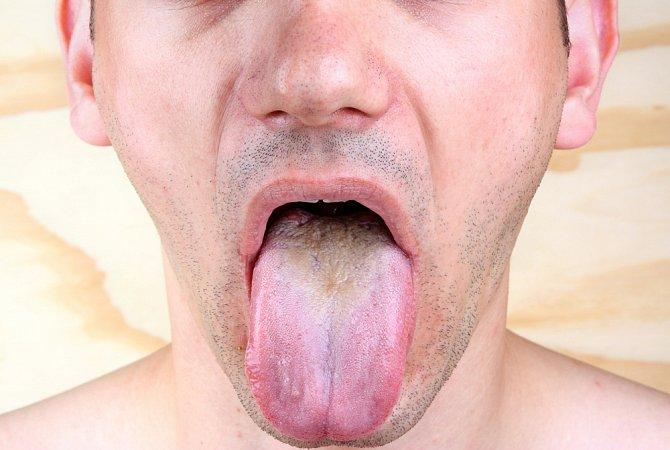 Přemnožené bakterie na jazyku se poznají na první pohled
