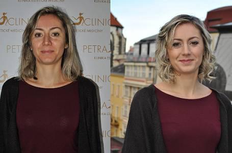 """Proměna: Ivana (37) – """"Chci se naučit odpočívat!"""""""