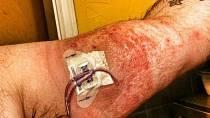 Alergie na náplast.