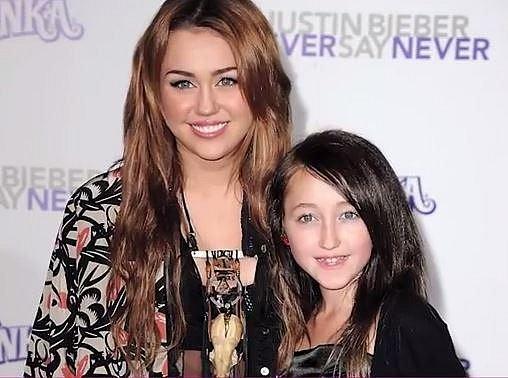 Noah Cyrus - Noah je mladší sestrou Miley Cyrus a podle médií má za sebou mnoho plastických operací včetně například pozvednutí obočí, vyplněných tváří, rtů...
