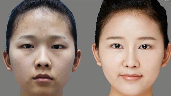 Ideál krásy v Zemi vycházejícího slunce: Jaké plastické operace nejčastěji podstupují Japonci? Tomu byste nevěřili