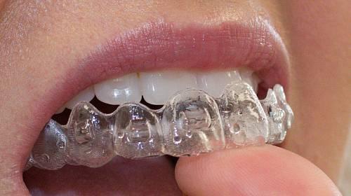 Rovné zuby jsou nejen hezké, jsou i zdravé
