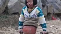 Qian Hongyan - Qian byly pouhé čtyři roky, když při autonehodě přišla o obě dolní končetiny. V deseti letech konečně dostala své první protézy. Dnes se mladá žena věnuje plavání a účastnila se i paralympiády.