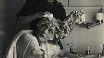 Pokožka dává najevo, že není čistá, což má následně vliv i na kvalitu vlasů.