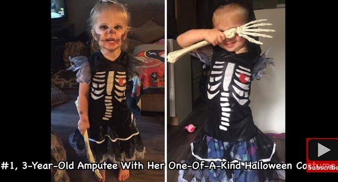 Tříletá holčička bez ruky, ovšem se skvělým kostýmem na Halloween.