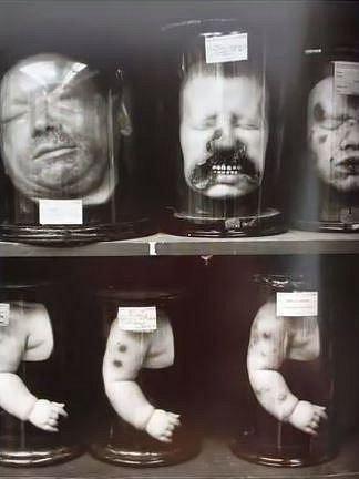 Lidské ostatky v muzeu