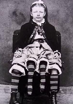 Josepene Myrtle Corbin vystupovala coby žena se čtyřmi nohami. Josepene se narodila s vrostlým parazitickým dvojčetem. Z břicha jí vyrůstalo další kompletní tělo od pasu dolů. Josepene mohla svými vnitřními menšími nohami pohybovat.