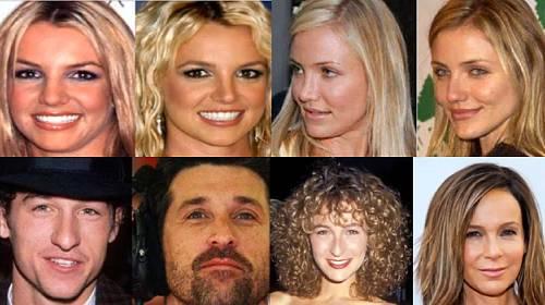 Celebrity, které podstoupily plastiku nosu