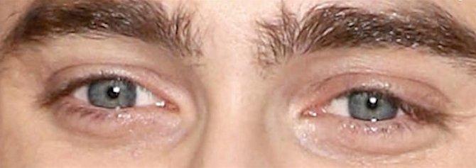 Uhádnete komu tyto oči patří?