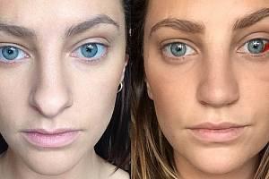 Rhiannon Langley ukázala světu, jak operace nosu bolí, ale také, jak dokáže totálně změnit život