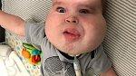 Gavin trpí lymfatickou malformací krku a brady.