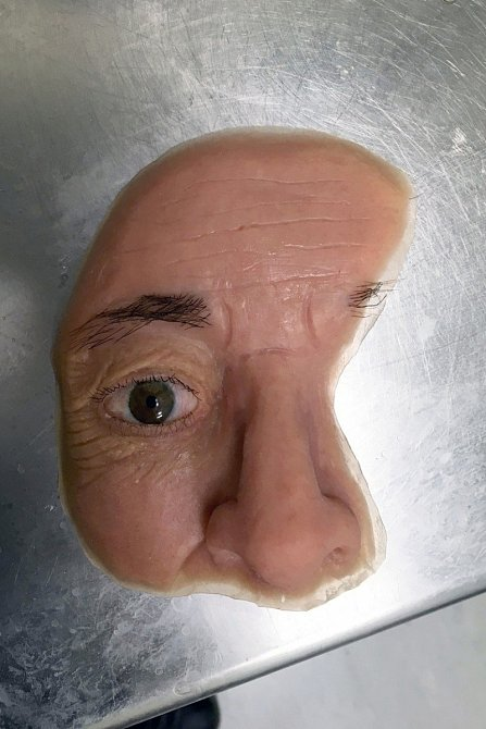 Obličejová protéza je díky svému provedení unikátní a nahrazuje muži obličej, který ztratil při léčbě rakoviny.