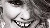 Nedokonalé zuby