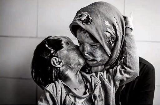 Somayeh Mehri se svou tříletou dcerou Ranou, obě byly napadeny manželem a zároveň otcem. Ten je v noci polil kyselinou, když spaly. Důvodem bylo to, že se Somayeh chtěla nechat rozvést po letech trvajícím týrání.