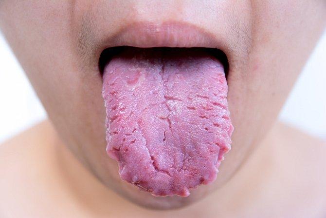 Přemožené bakterie na jazyku se poznají na první pohled