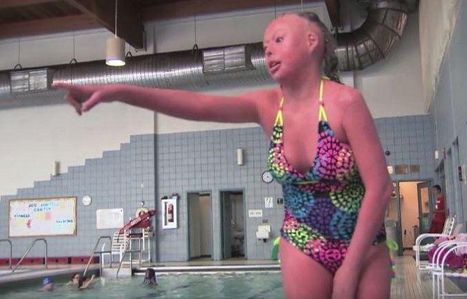 Mladé ženě lidé zakazovali chodit do veřejného bazénu z obavy, že je nemocí nakazí. Naštěstí ale ichtyóza není nakažlivá.