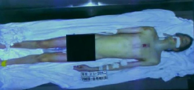 Fotografie těla Michaela Jacksona