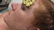 Bethany během léčby.