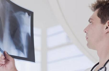 Transplantace plic zachraňuje život