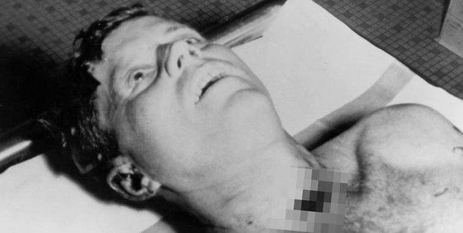 Tělo Johna F. Kennedyho v den atentátu v roce 1963.