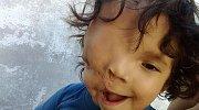 Zdeformovaný obličej mu znepříjemňuje život, ale bojuje o každý den.